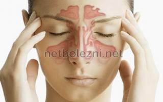 Эффективный препарат от хронического гайморита