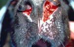 Аспергиллезный синуситы