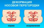 Сухой ринит симптомы и лечение