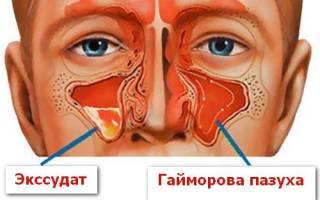 Что значит экссудативный гайморит