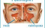 Симптомы начального гайморита