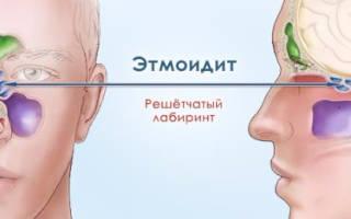 Катаральный этмоидит гайморит