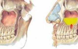 Эндоскопическое лечение одонтогенного гайморита